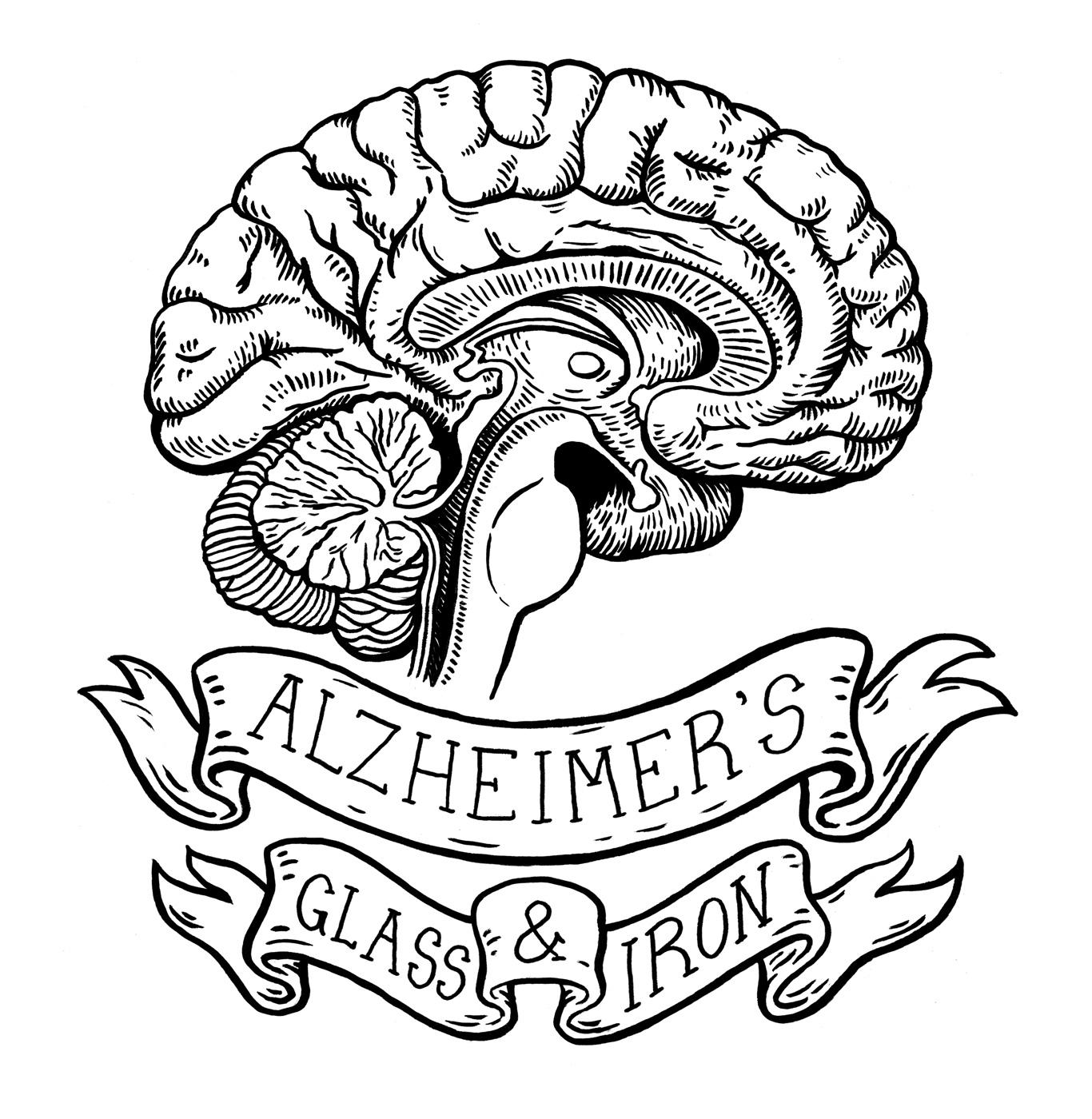 Alzheimer's Glass & Iron